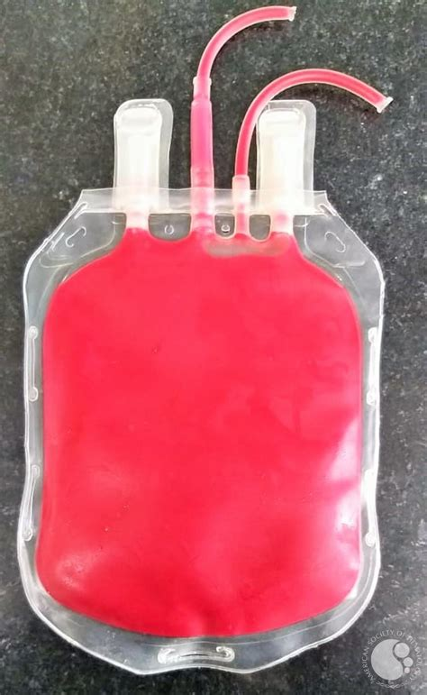 Cherry Red Discoloration of Blood Unit