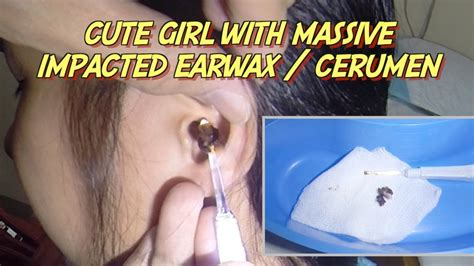 Cute Girl with Massive Impacted Earwax / Cerumen Removal