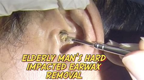 Elderly Man's Hard Impacted Earwax Removal - YouTube